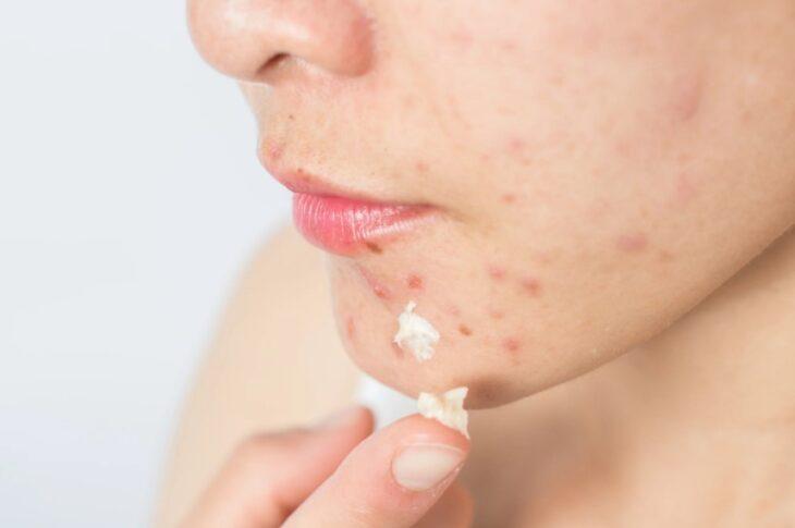 77% Perempuan Indonesia yang Memiliki Masalah Jerawat Pernah Mengalami Acne Shaming